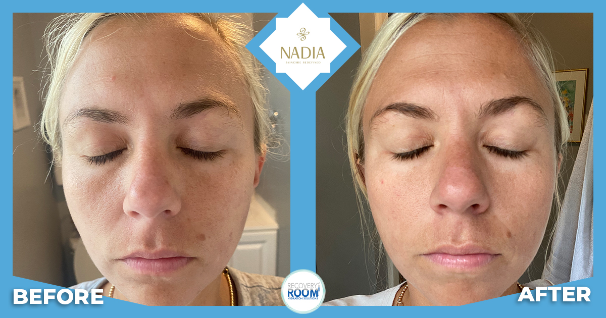 NADIA Skincare before and after with Jamie