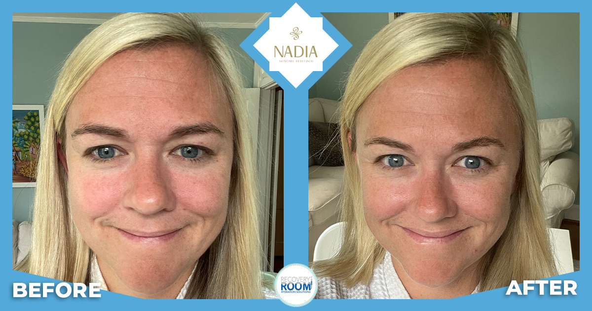 NADIA Skincare before and after with Katie.